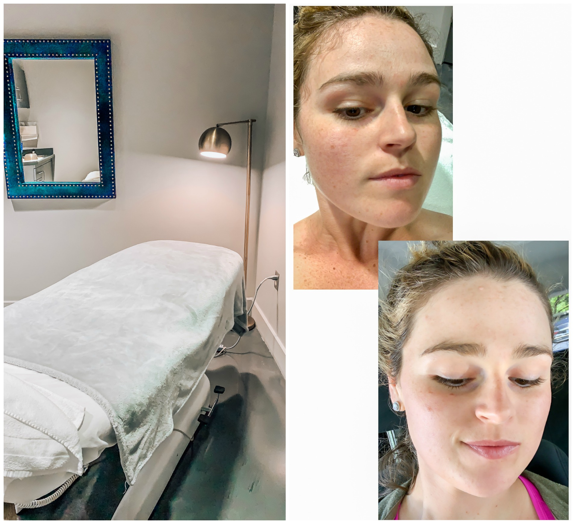 dr capizzi md dermaplaning charlotte nc 900 east boulevard dilworth md facials skin healthy glow surgeon
